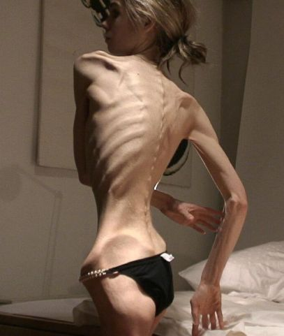 anorexia-cuando-21